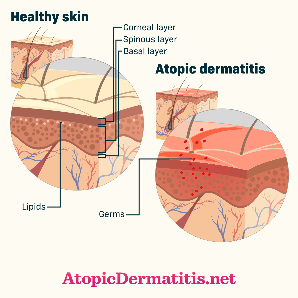 How Does Atopic Dermatitis Affect The Skin And Body