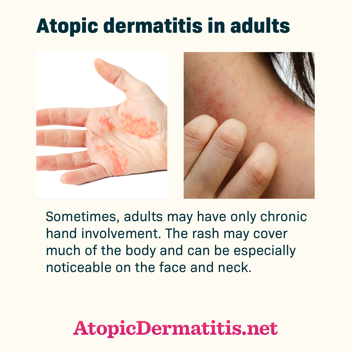 Atopic dermatitis in adults