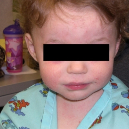 Baby with rash on face