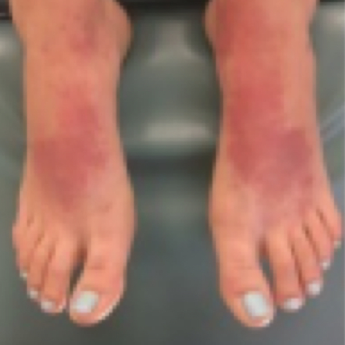 Contact Dermatitis: Image Gallery -- Atopic Dermatitis In Adults