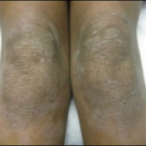 Knees with thickened skin and changes in skin color