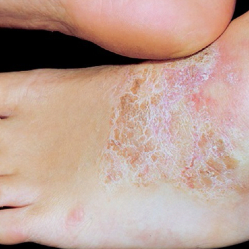 Thick, scaly patches on top of foot