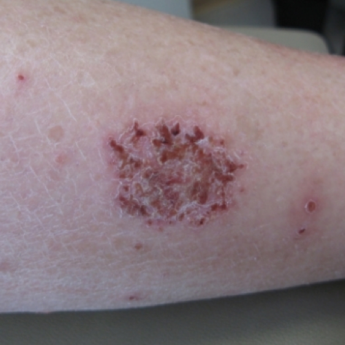 Scaly, coin-shaped red spots on the skin