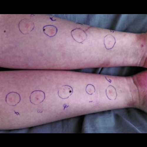 Labeled spots on arms for prick test