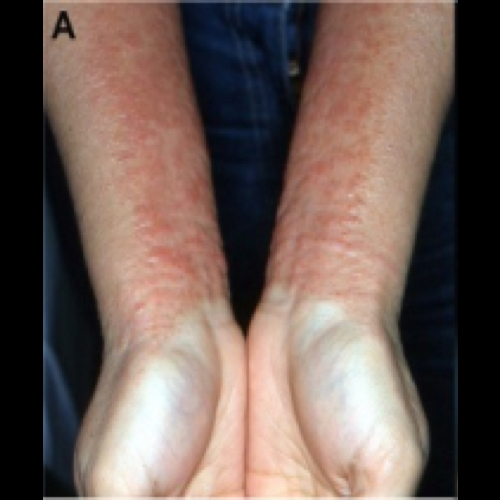 Topical Steroid Withdrawl (Red Skin Syndrome)