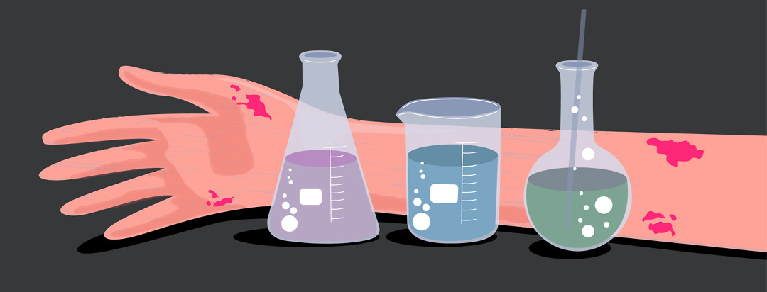 An arm with eczema is in the background with scientific beakers in the foreground.
