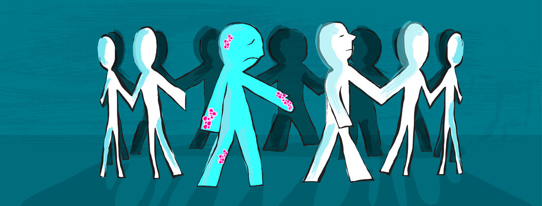 Figures are holding hands in a circle, while one is singled out and the chain is broken because the rest refuse to hold their hand which is affected by eczema.