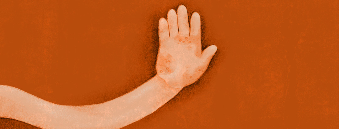 A hand with eczema is holding up 5 fingers for the 5 worst eczema locations.