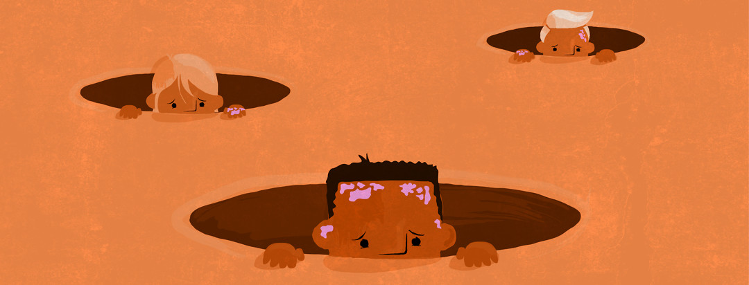 Three people with eczema are hiding in holes in the dirt with worried expressions.