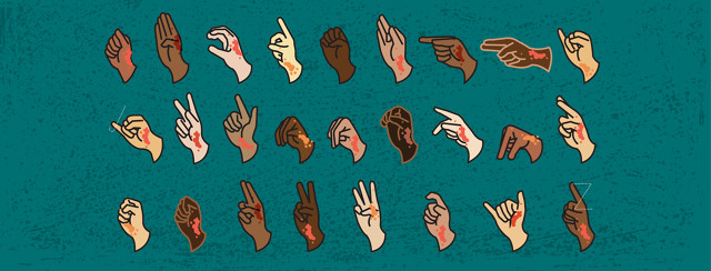 Hands, showing eczema lesions, are signing the alphabet