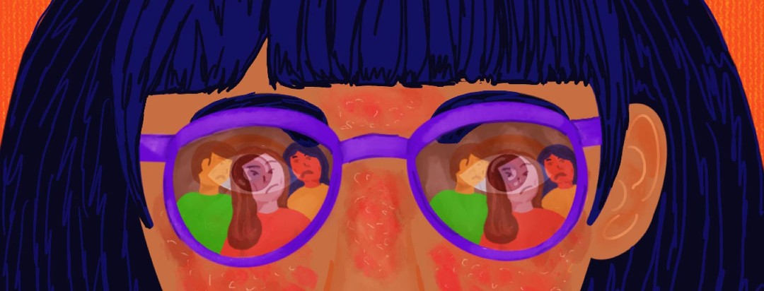 face with visible eczema reflection in glasses shows three people with sour expressions