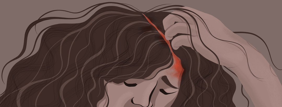 A woman disheartened, scratches at her inflamed and irritated scalp eczema.
