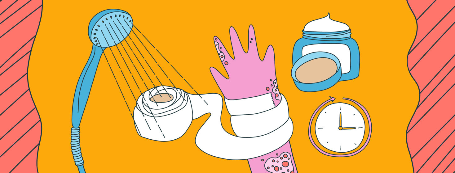 The process of wet wrapping is shown with a shower head, gauze wrapping around a hand with eczema, cream, and a clock.
