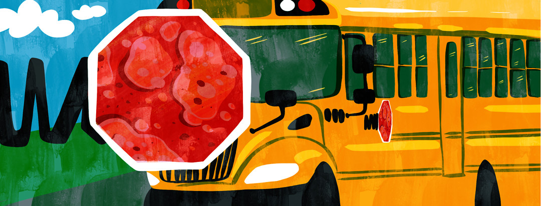 A school bus with a red stop sign extended showing eczema patches all over it.