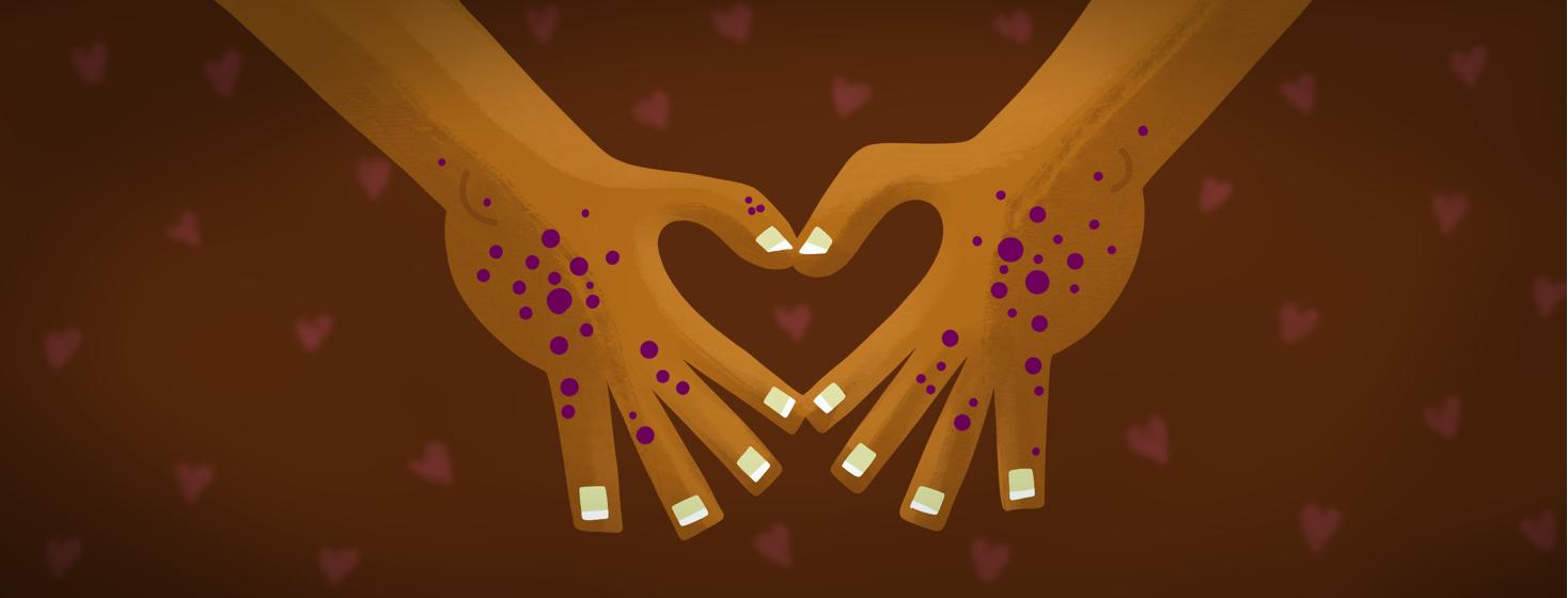 An Eczema Love/Hate Story image