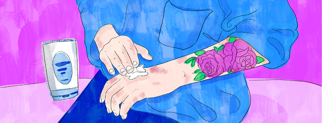 A person applies cream to their arm with eczema patches and a rose tattoo.