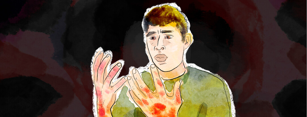 A male incredulously looks at his hands showing signs of eczema.