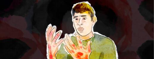 Eczema is Slowly Crawling onto My Hands image